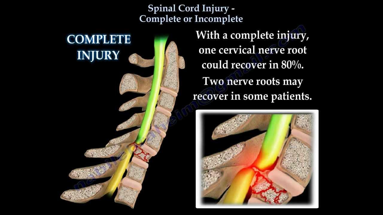 spinal cord injury patientsa - 1280×720